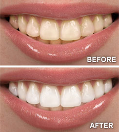Teeth Whitening Before and After - St. Pete Oral Health Center